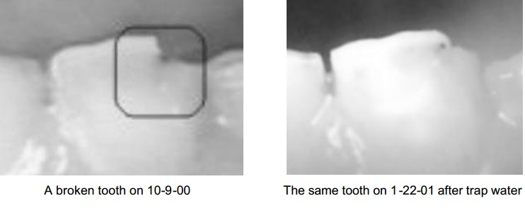 Re-Growing Tooth – Photo | MaxVitality Book Blog